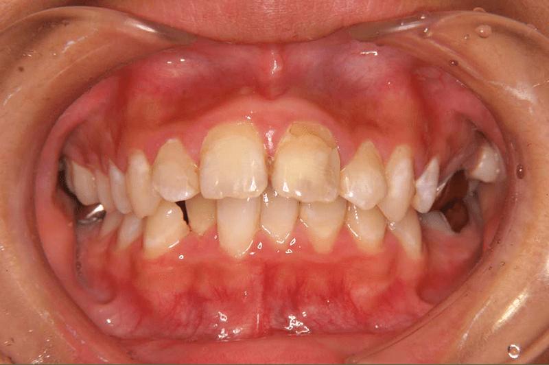 骨格的に上顎が前方にズレている(手術併用、上顎前突/小下顎症)