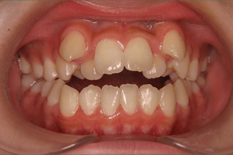 骨格的に上下の前歯が咬めていない(手術併用、開咬)
