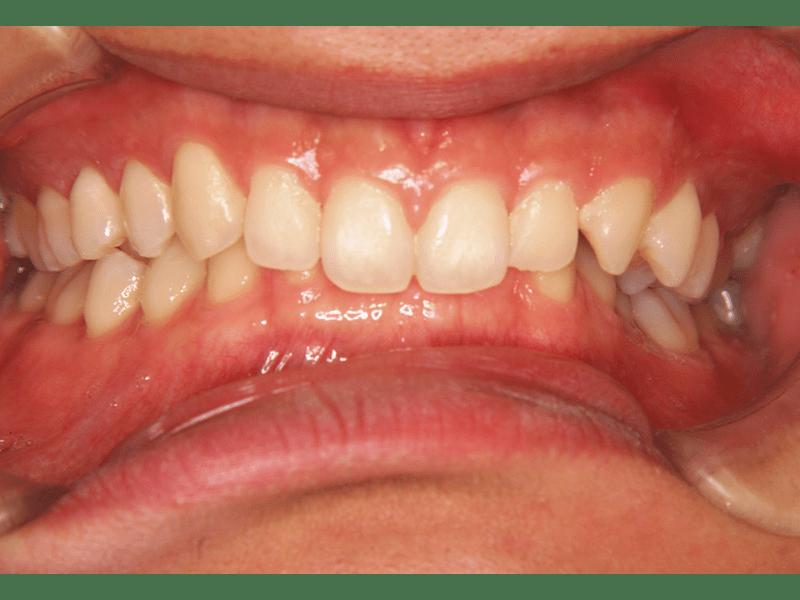 咬み合わせが深い。下の歯が上の歯に覆われている(過蓋咬合)