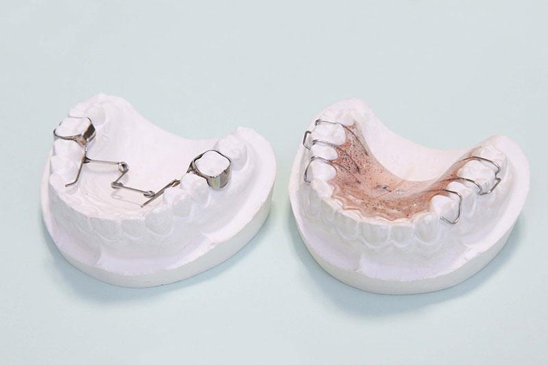 (2) 装置を装着して治療を開始