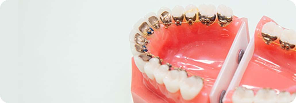 カスタムメイド舌側矯正歯科装置(インコグニト)