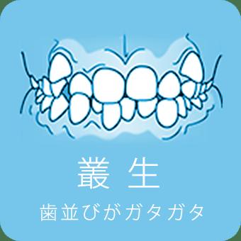 叢生 歯並びがガタガタ