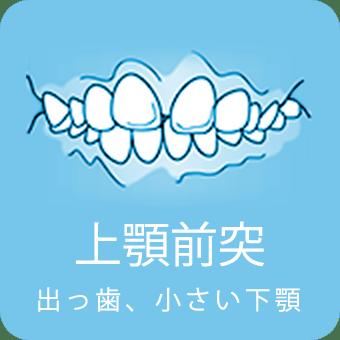 上顎前突 出っ歯、小さい下顎