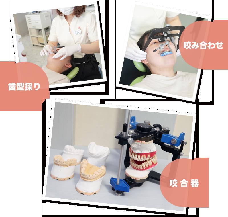 歯型彩り、咬み合わせ、咬合器