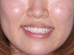笑顔 Before