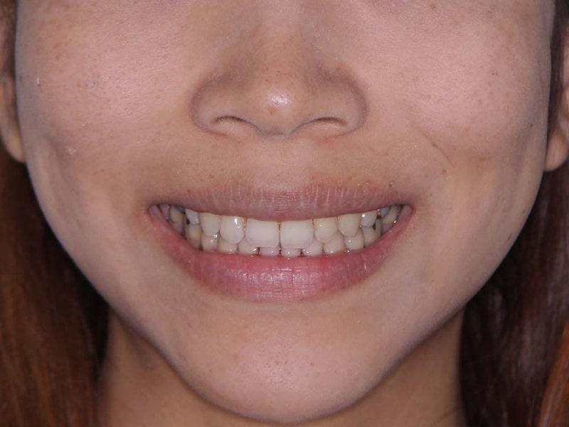 笑顔 After